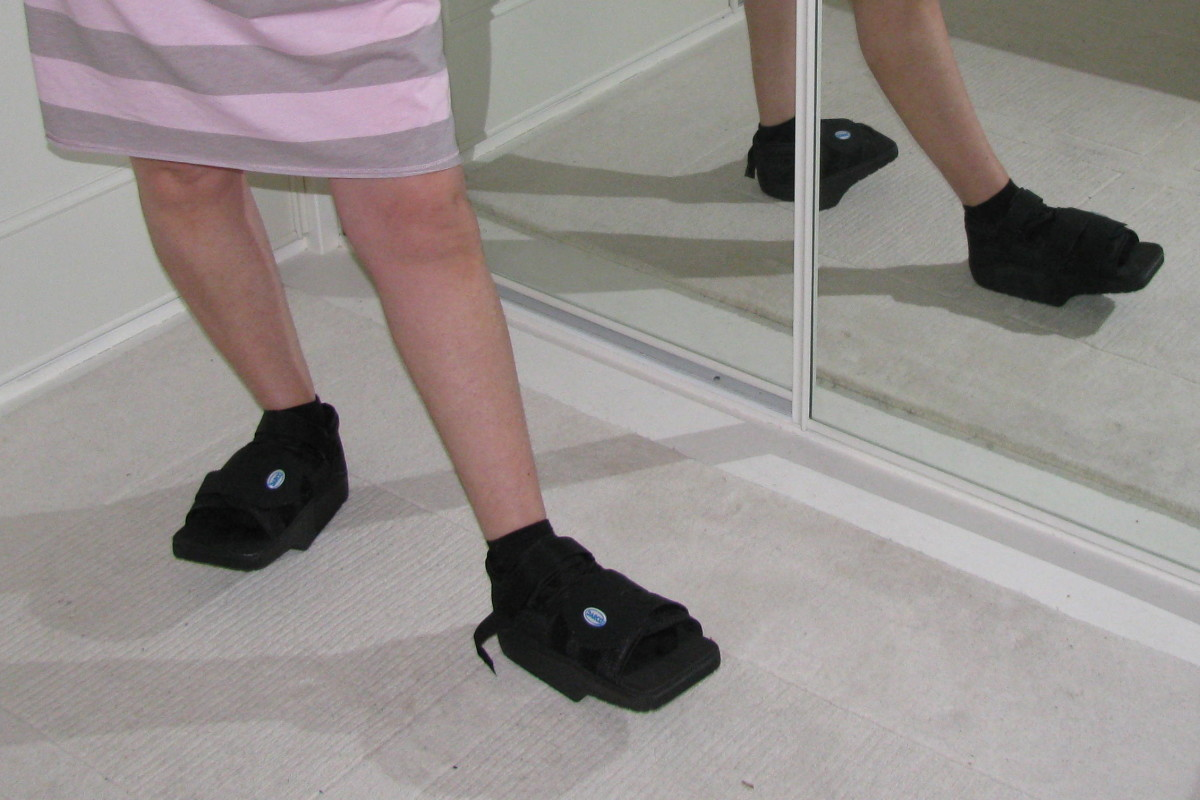 Shoes To Wear After Bunion Surgery