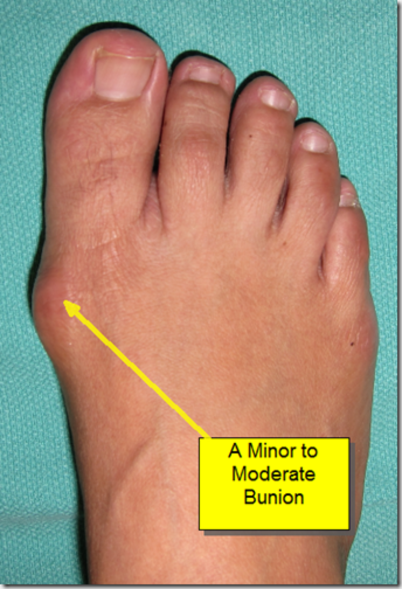 Much the same as the bunions I had