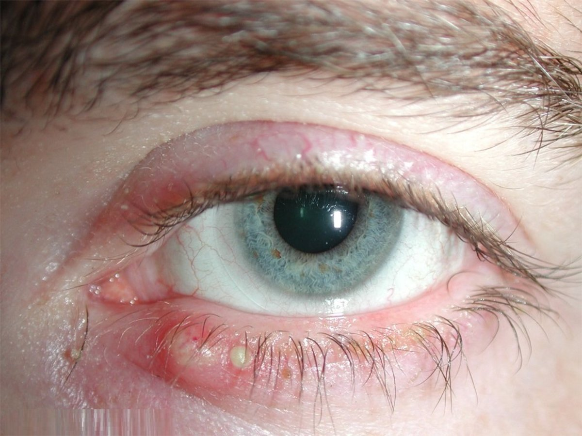 Blepharitis an Eyesore for Sure