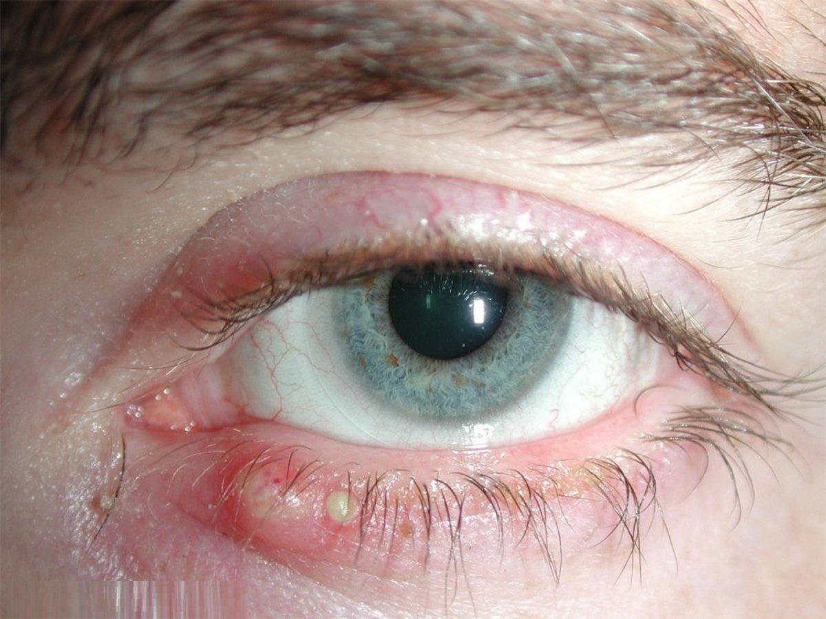 Blepharitis An Eyesore For Sure Hubpages
