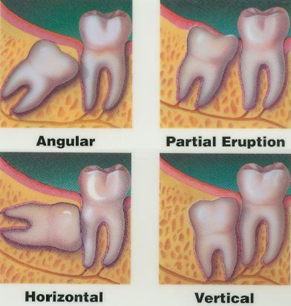 Embedded And Impacted Teeth