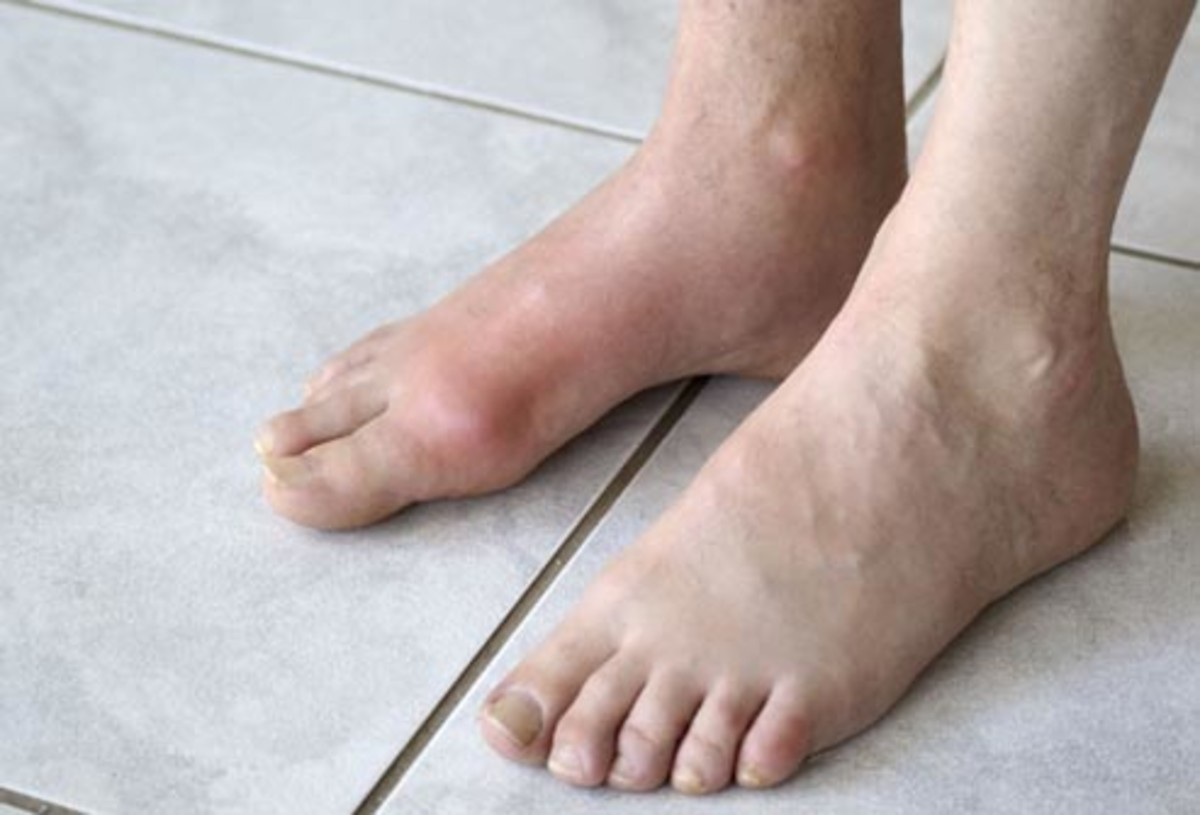 Diabetes can affect your feet