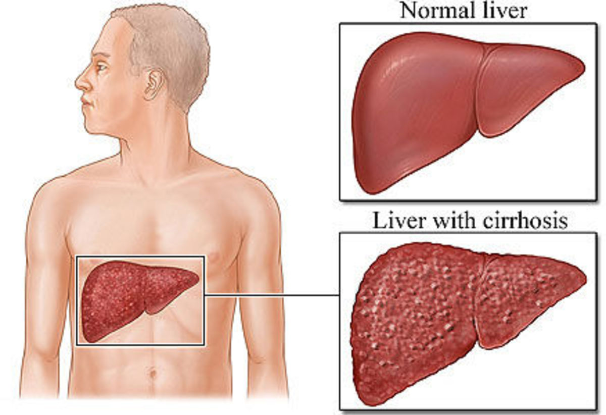 Foods to avoid during Cirrhosis