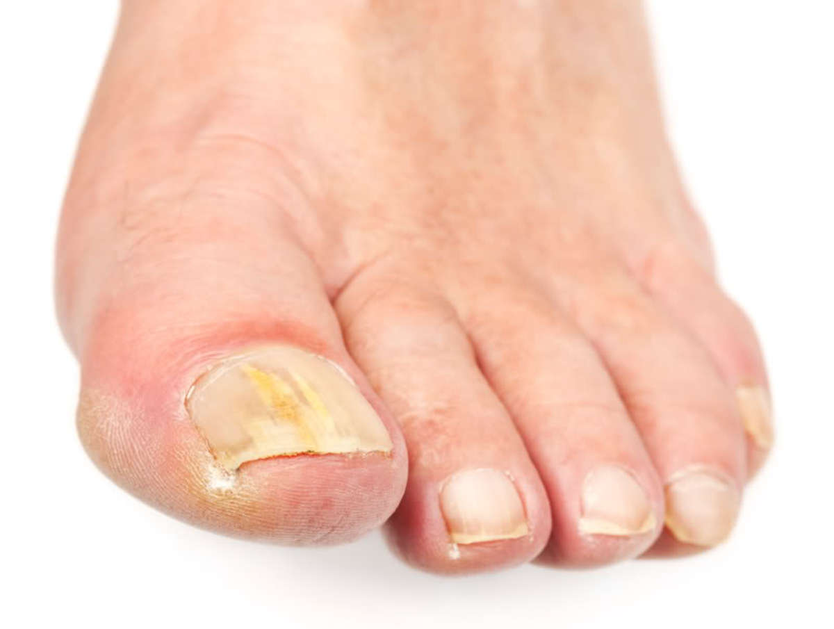 Toenail Fungus Remedies, Reported Cures, Treatments, and Natural ...