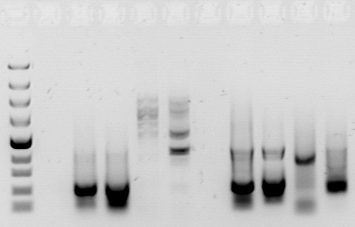 An agarose gel, showing bands of DNA after PCR. The bands on the left are a DNA ladder, used to determine the size of the bands created by the PCR samples.