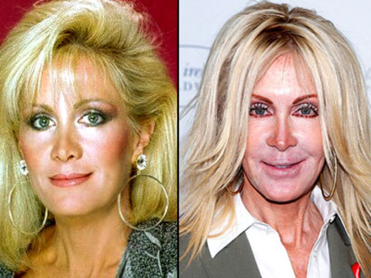 Joan Van Ark before and after.