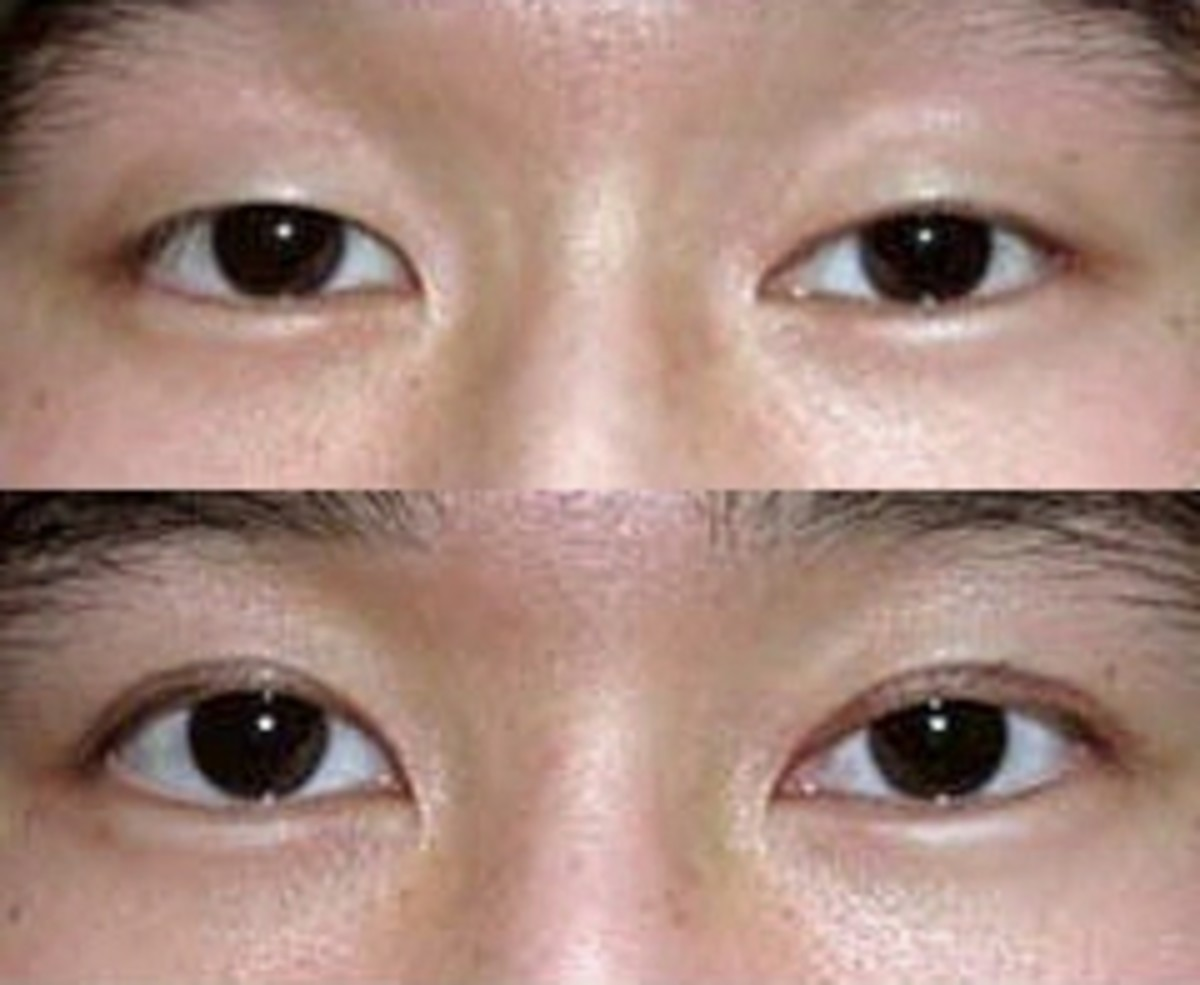 asian-eyelid-surgery-before-and-after-and-cost-of-procedure