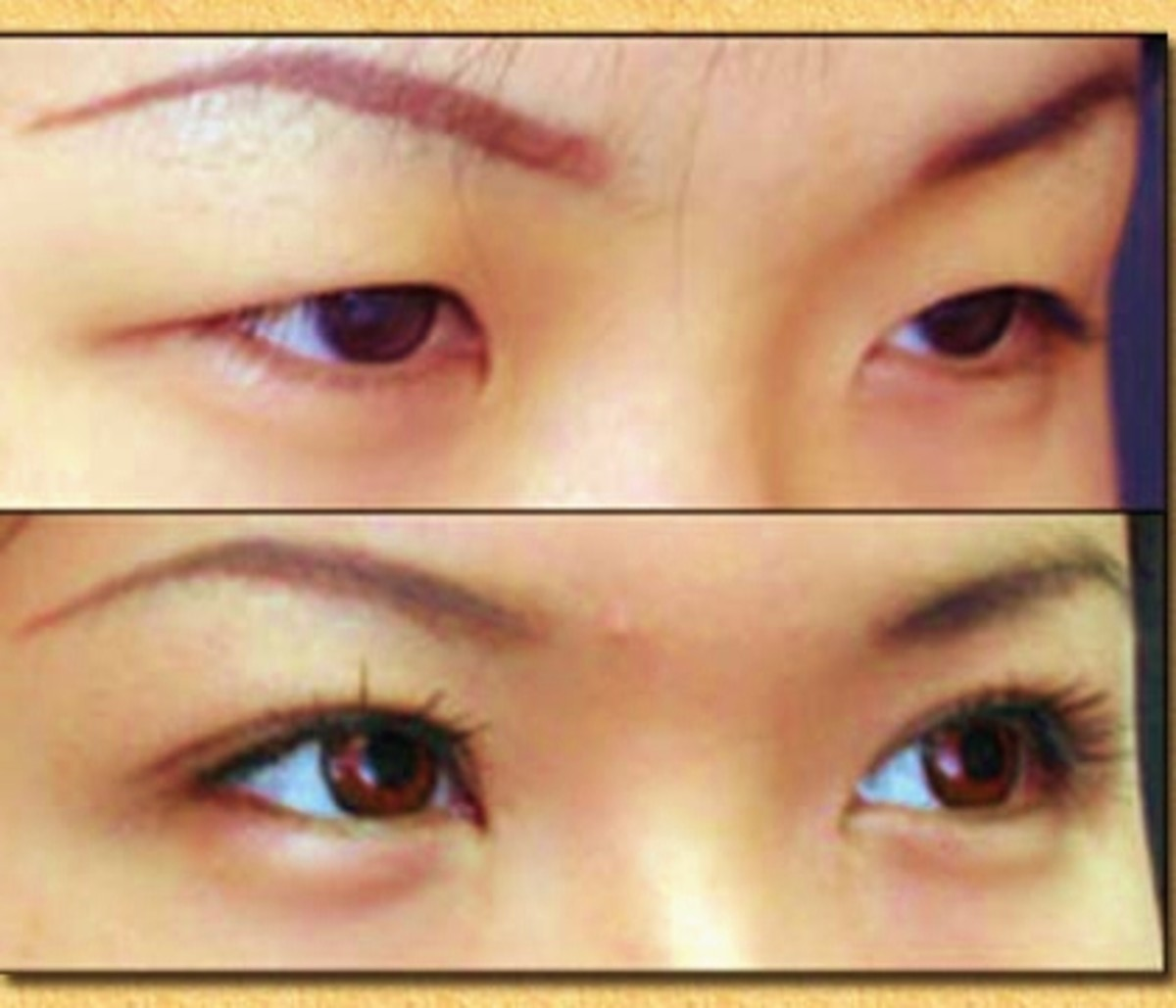 Asian Eyelid Surgery: Before and After Pictures and Cost of Procedure
