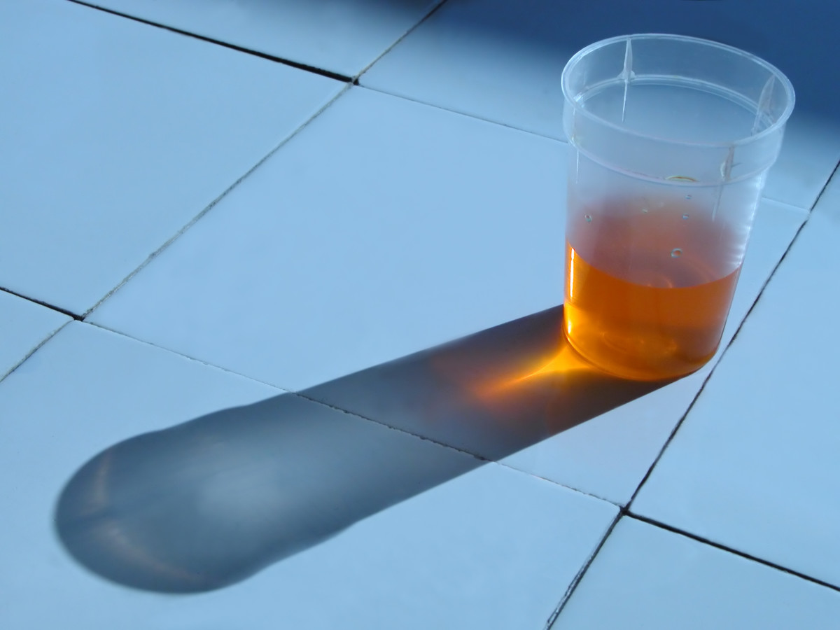 Urinary Tract Infection is usually found through urinalysis.