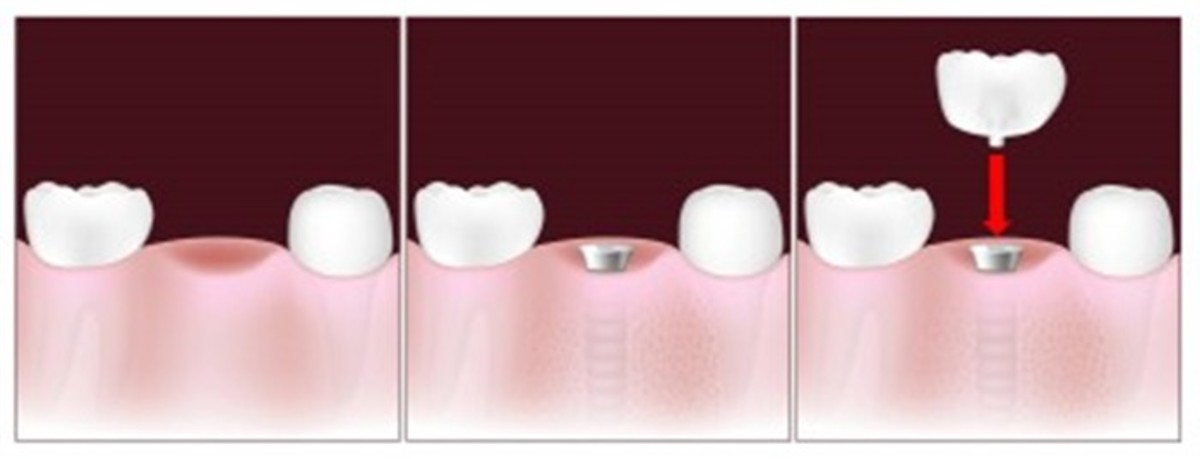 The three step dental implant process to replace a missing tooth