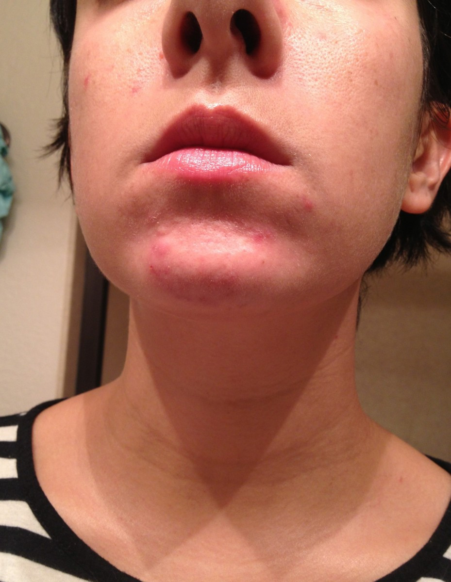 My Face (circa 2012) - The bulk of my acne is on or around my chin area.