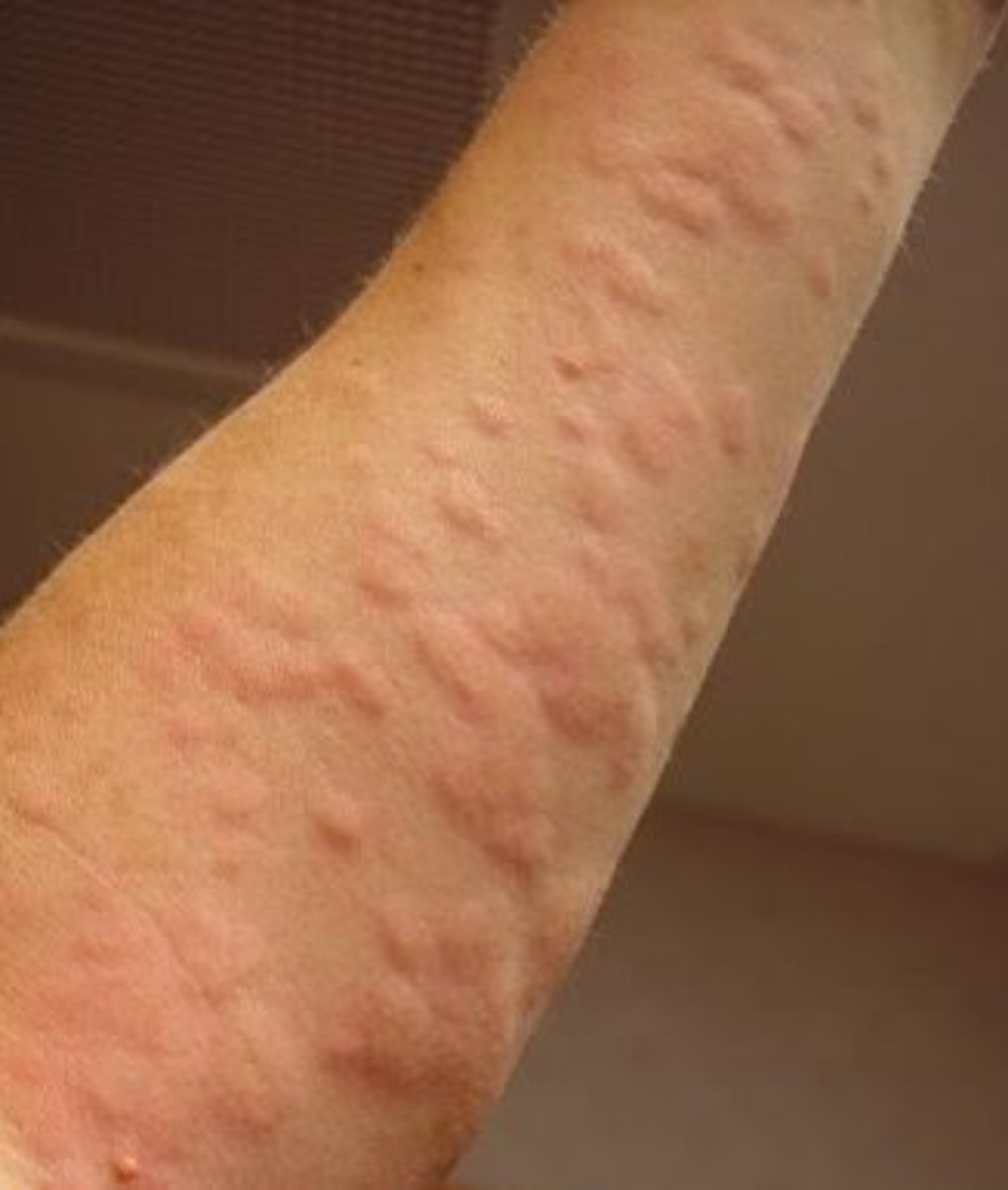 Hives Pictures
