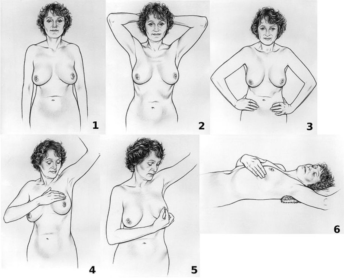 A series of six illustrations showing how to do breast self examination