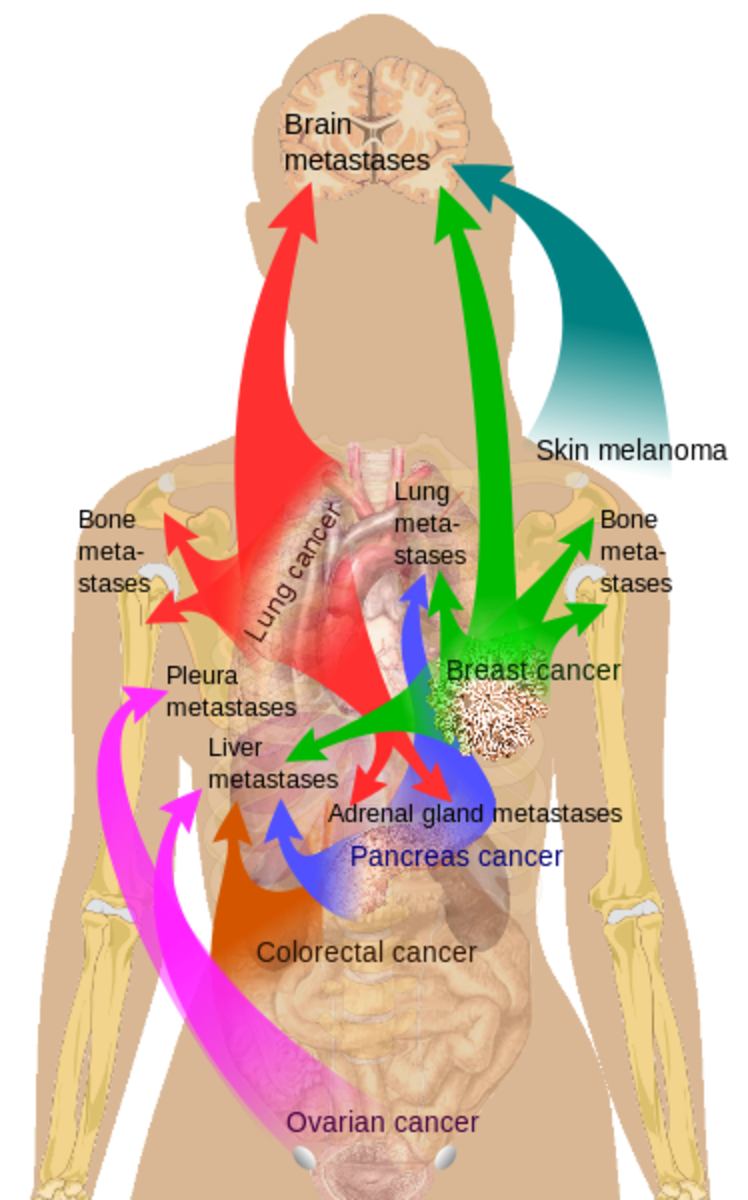 "Main sites of metastases for some common cancers.Primary cancers are denoted by ""...cancer"" and their main metastasis sites are denoted by ""...metastases""."