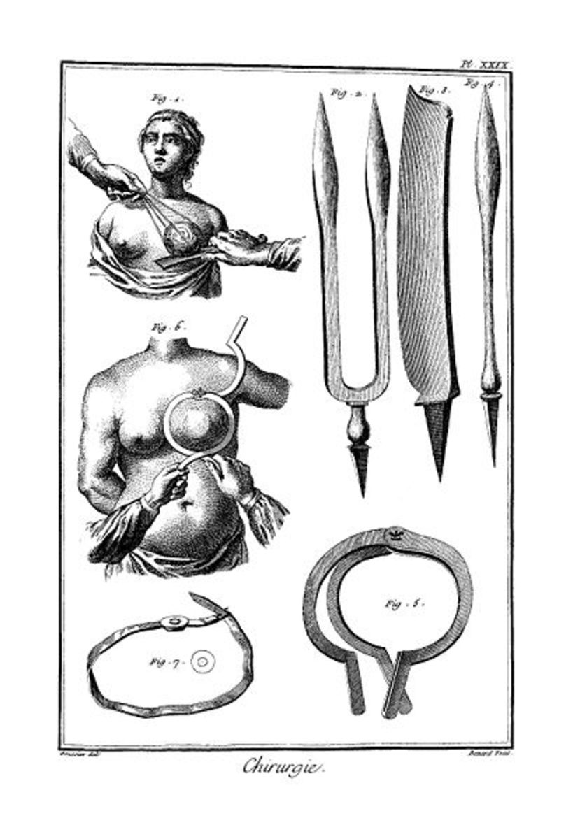 Breast cancer surgery in 18. century.