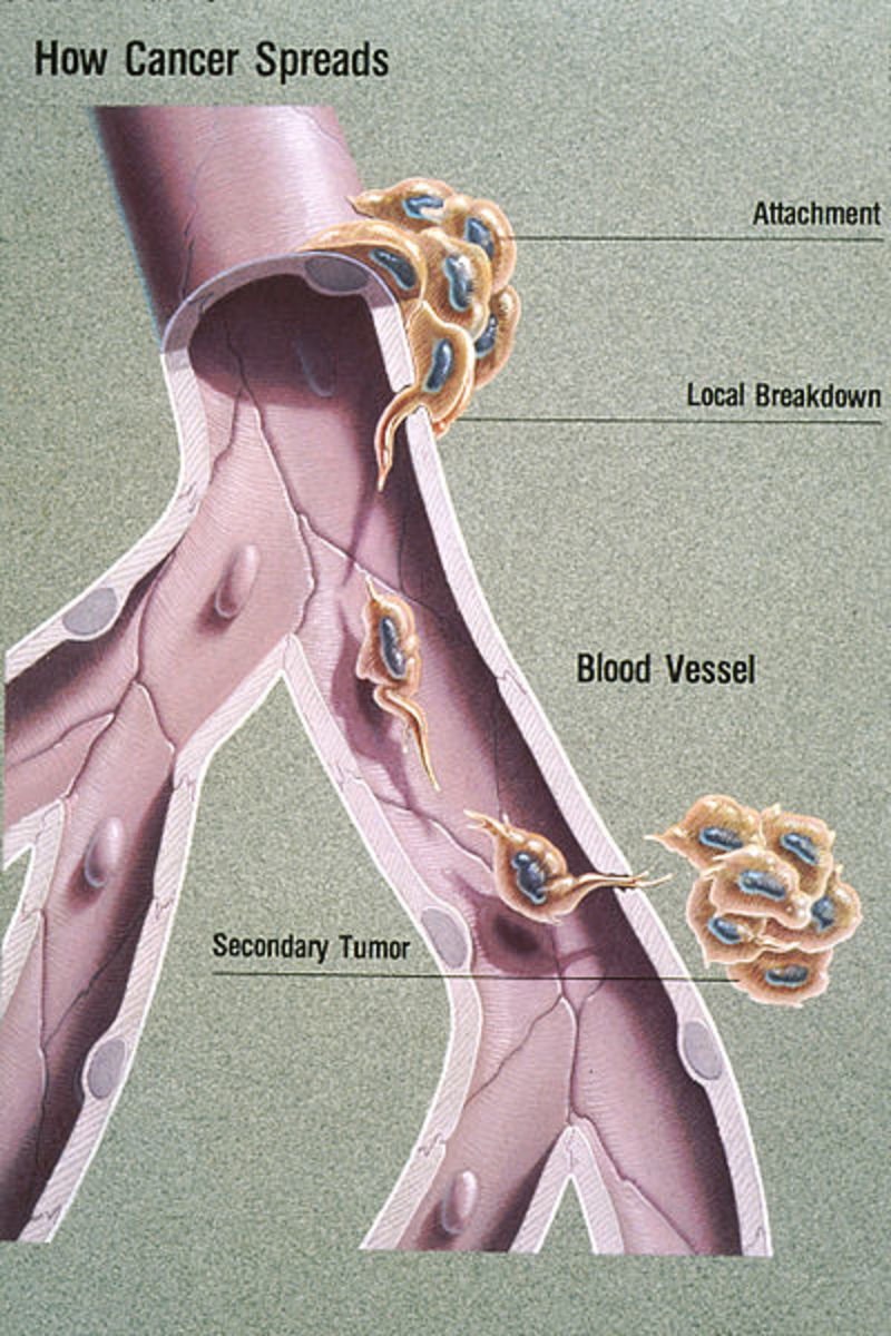 Metastasis  or how cancer spreads from one organ or part to another distant organ or part.