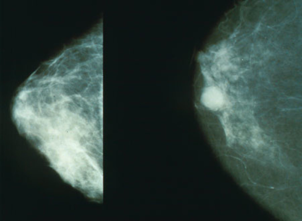 Mammography of breast cancer