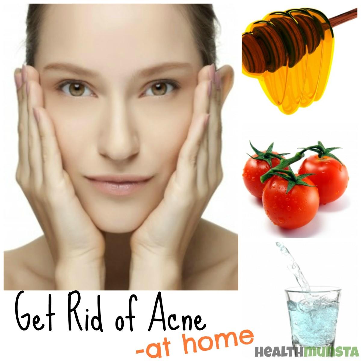 Get Rid of Acne at Home - Using Natural Remedies & Good Habits