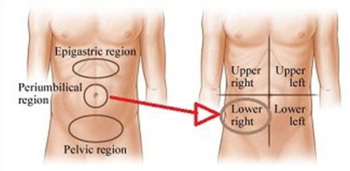 Progression of Appendix Pain