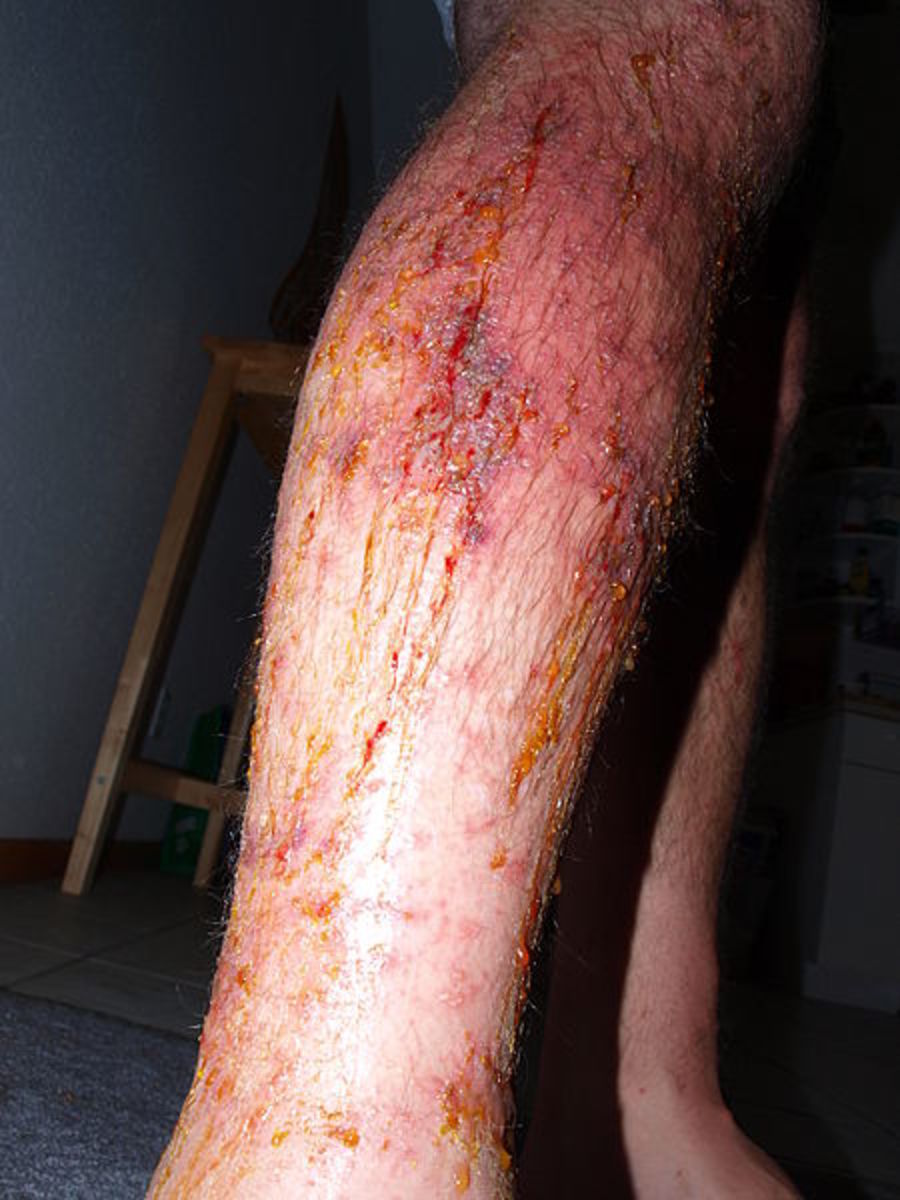 Poison ivy rash on lower leg