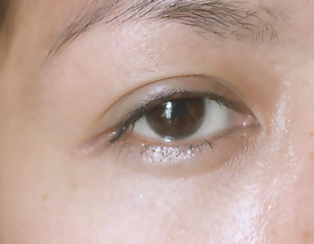 Puffy Eyelids - Symptoms, Causes, Treatment, Remedies