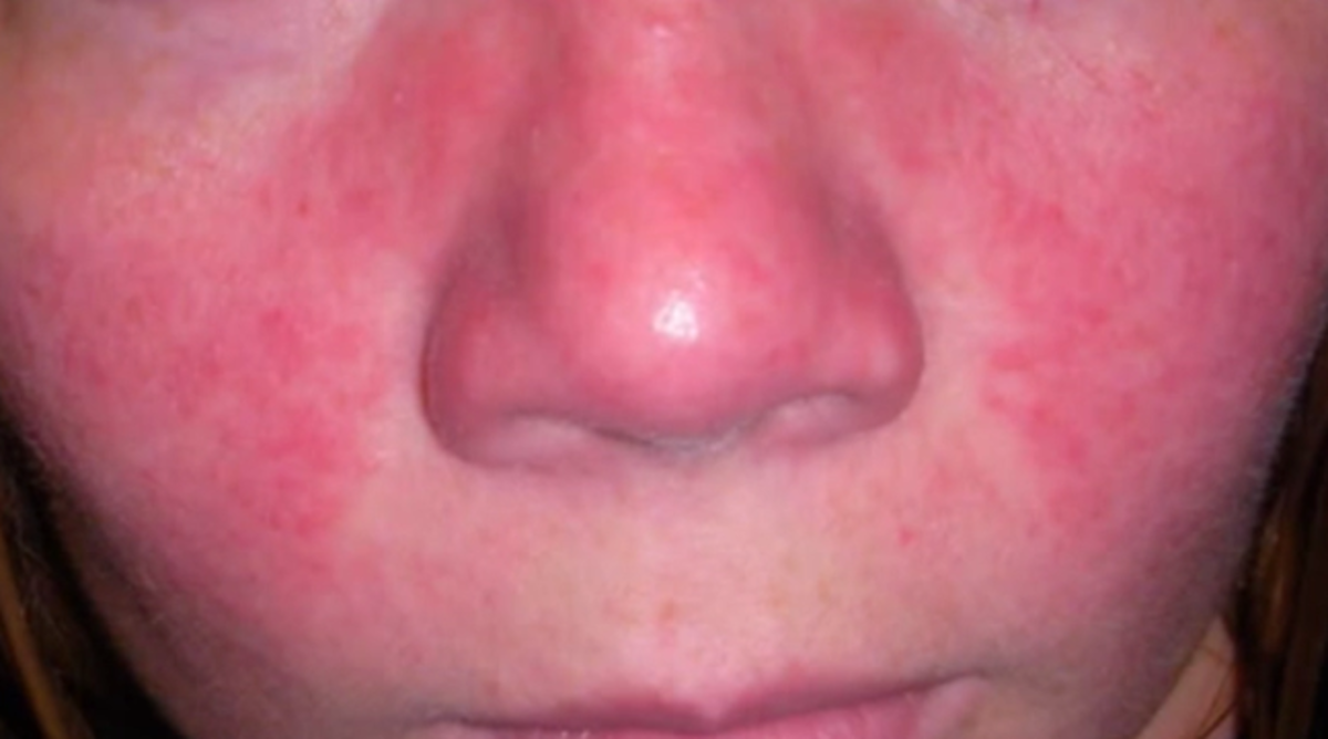 Bilderesultat for stress rash on face