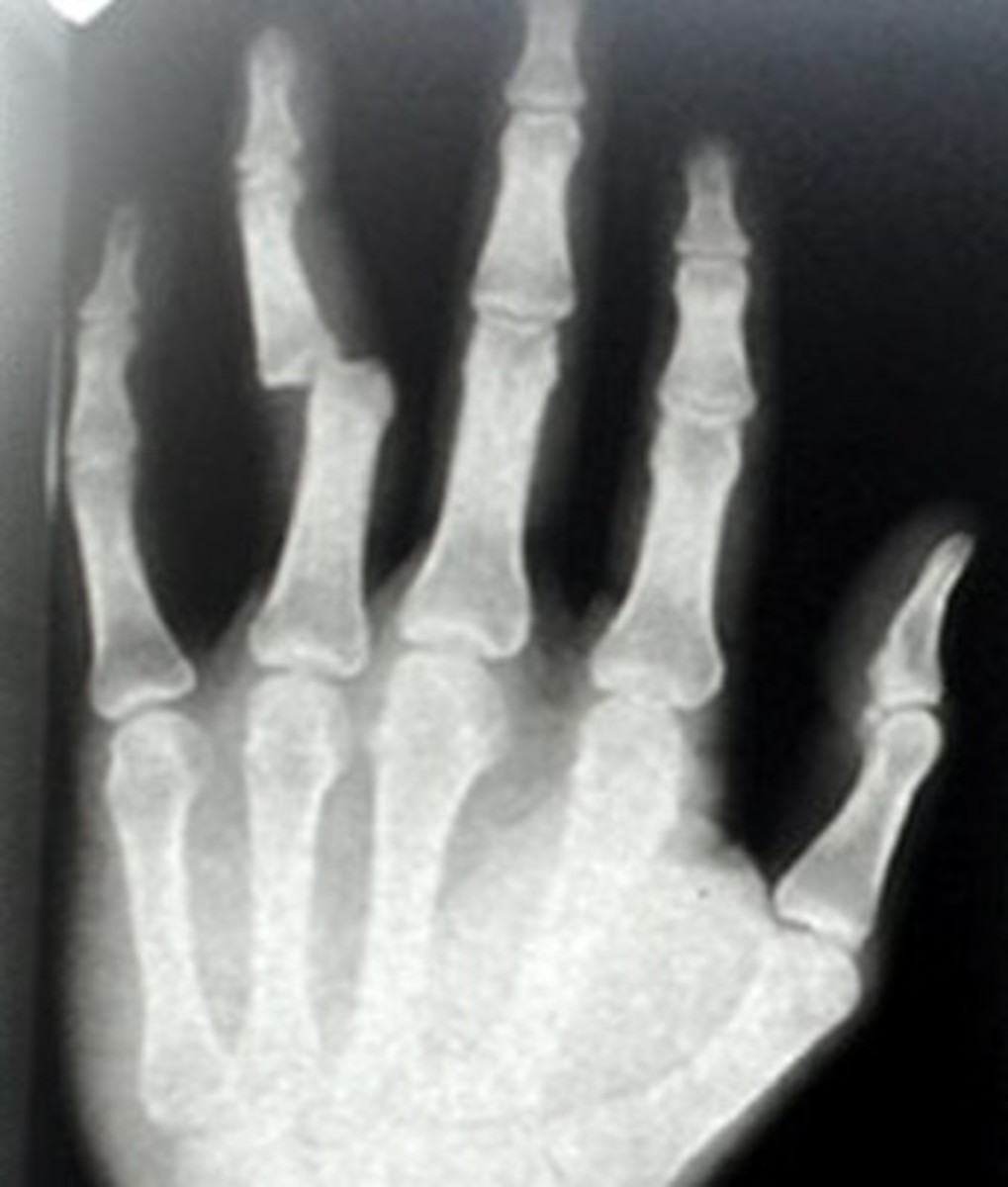 Broken Finger - Symptoms, Diagnosis, Healing time, Treatment