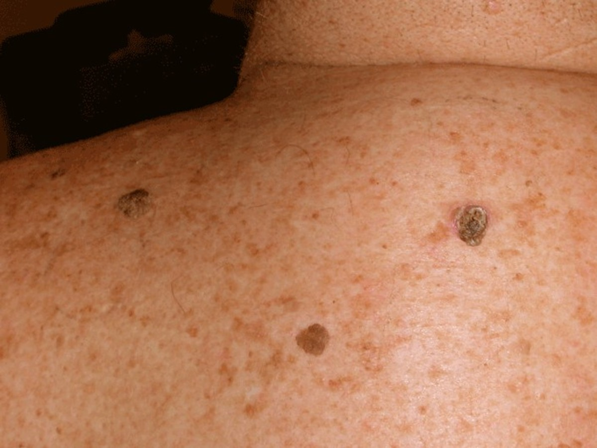 Seborrheic Keratosis - Pictures, Symptoms, Treatment, Removal and Causes