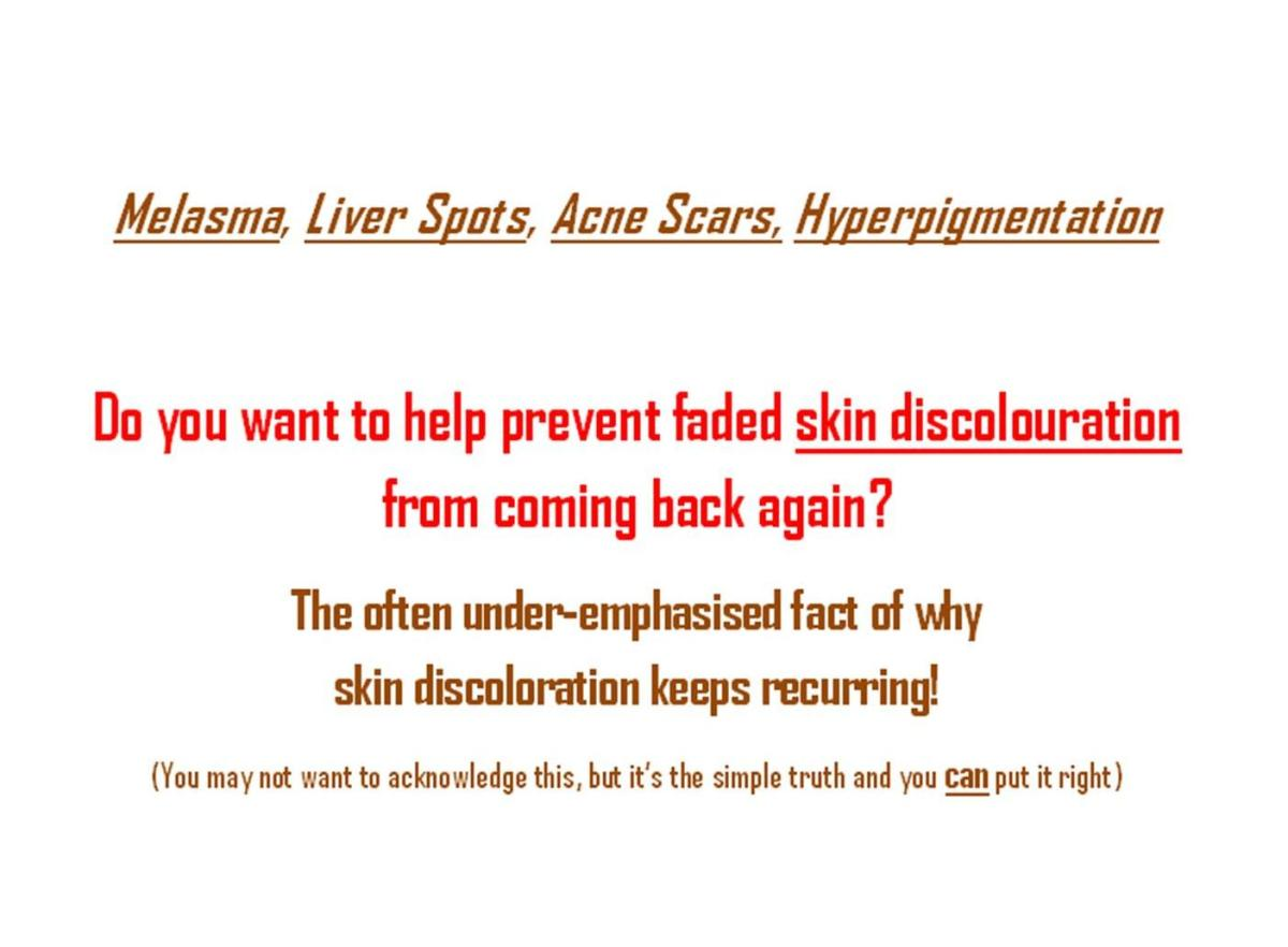 Melasma - Treatment AND Prevention
