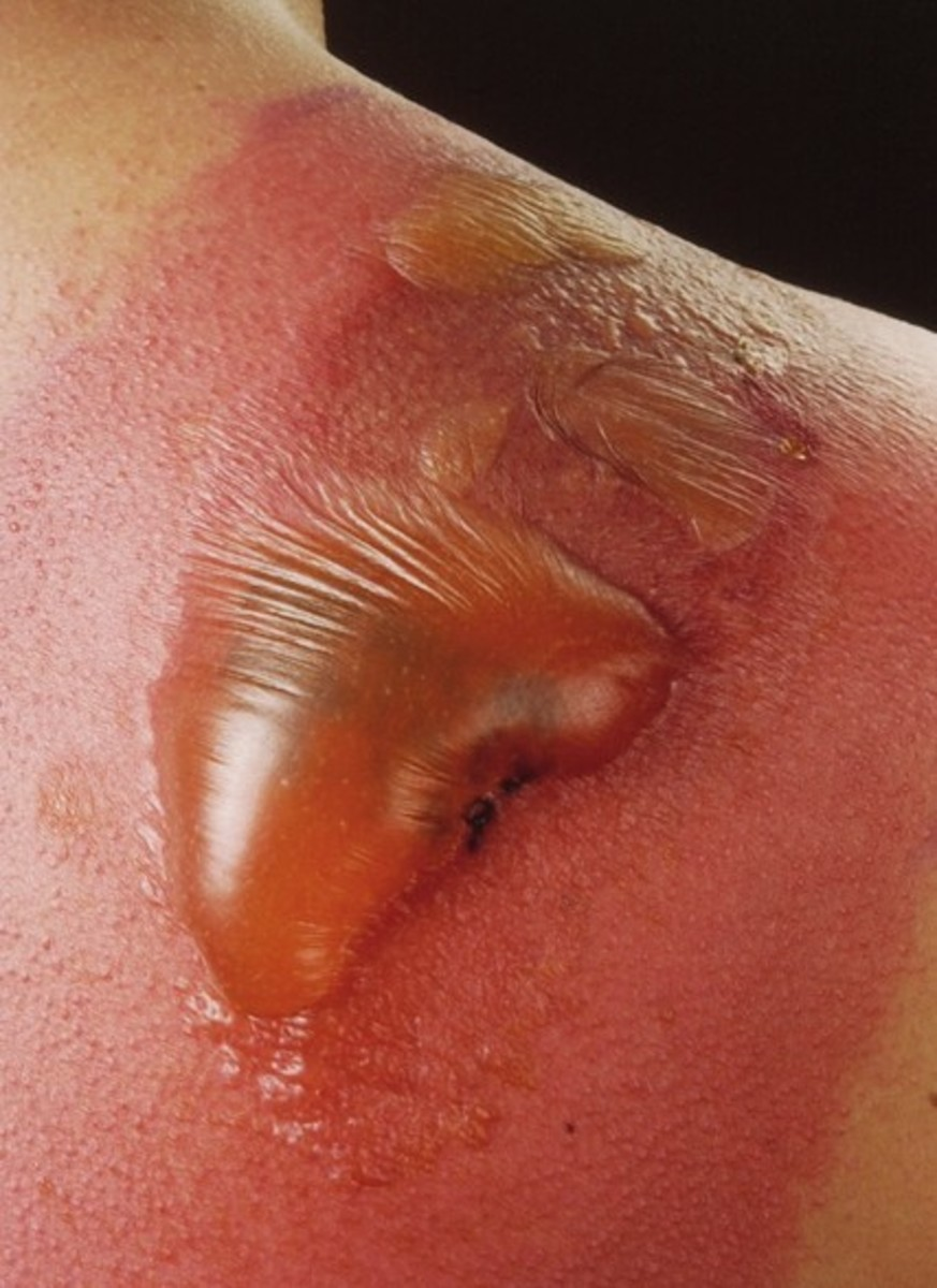 cellulitis-pictures-symptoms-treatment-contagious-causes-types