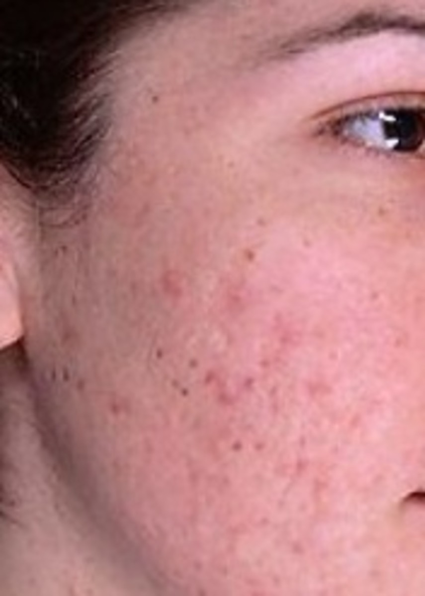 The after shock of acne