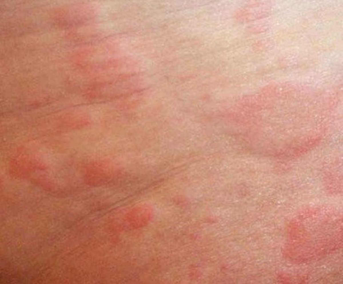Itchy Skin Rash