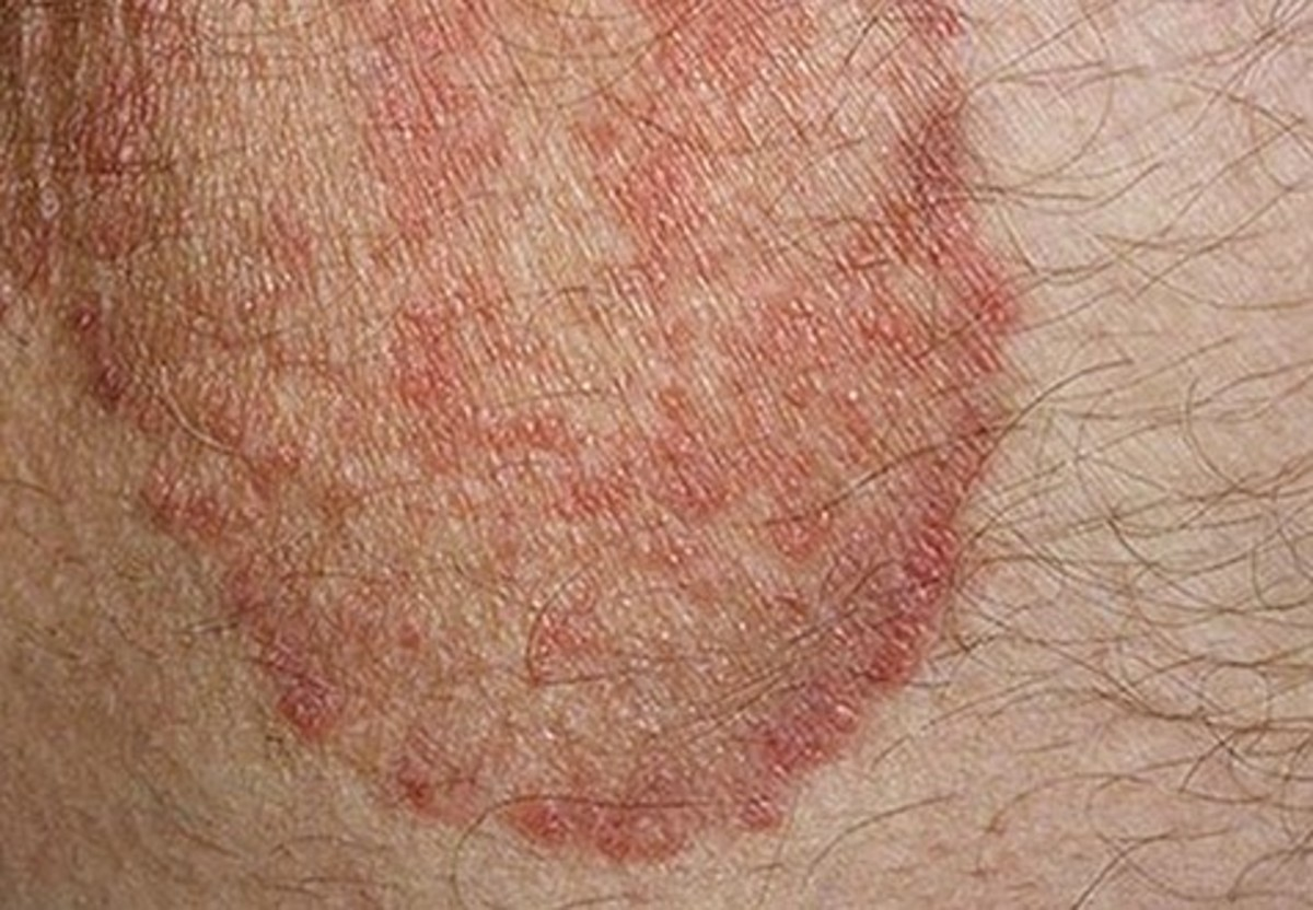 Itchy Skin Rash - Pictures, Causes, Symptoms, Treatment