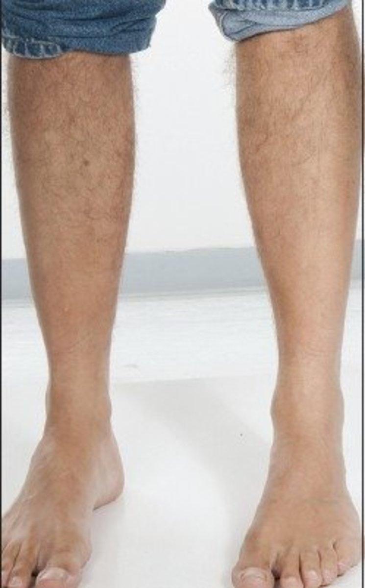 Anterolateral Leg Alopecia