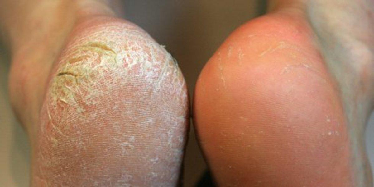 Get rid of callused feet.