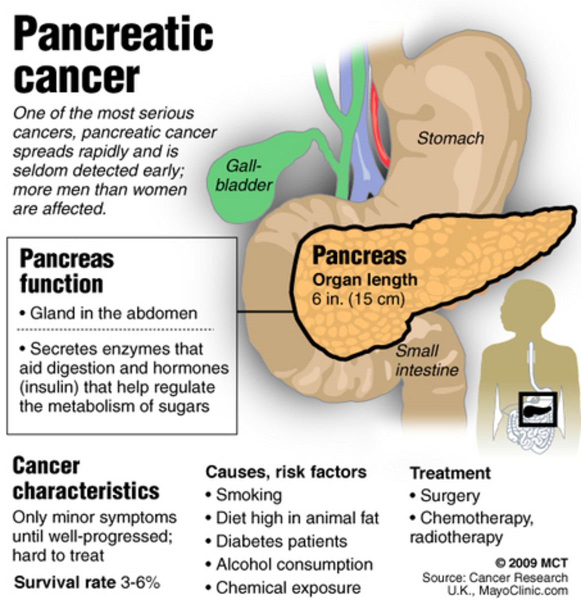 Explaining pancreatic cancer