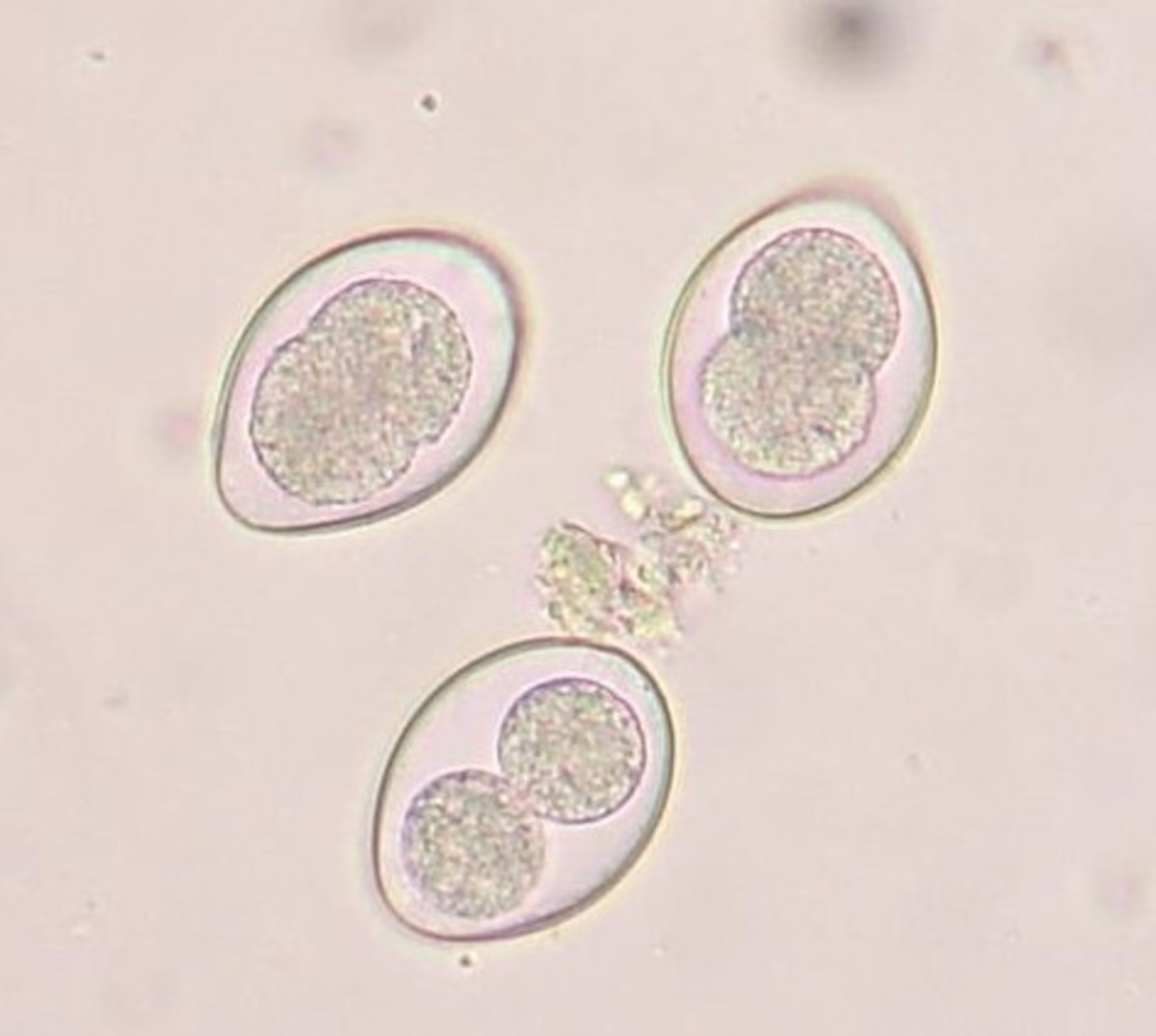 Coccidia oocysts of a cat under microscope