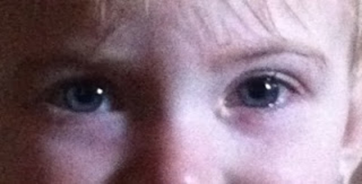 My daughter when I first noticed her eyes were different. A little bit of extra eye junk and puffiness under the eyes.