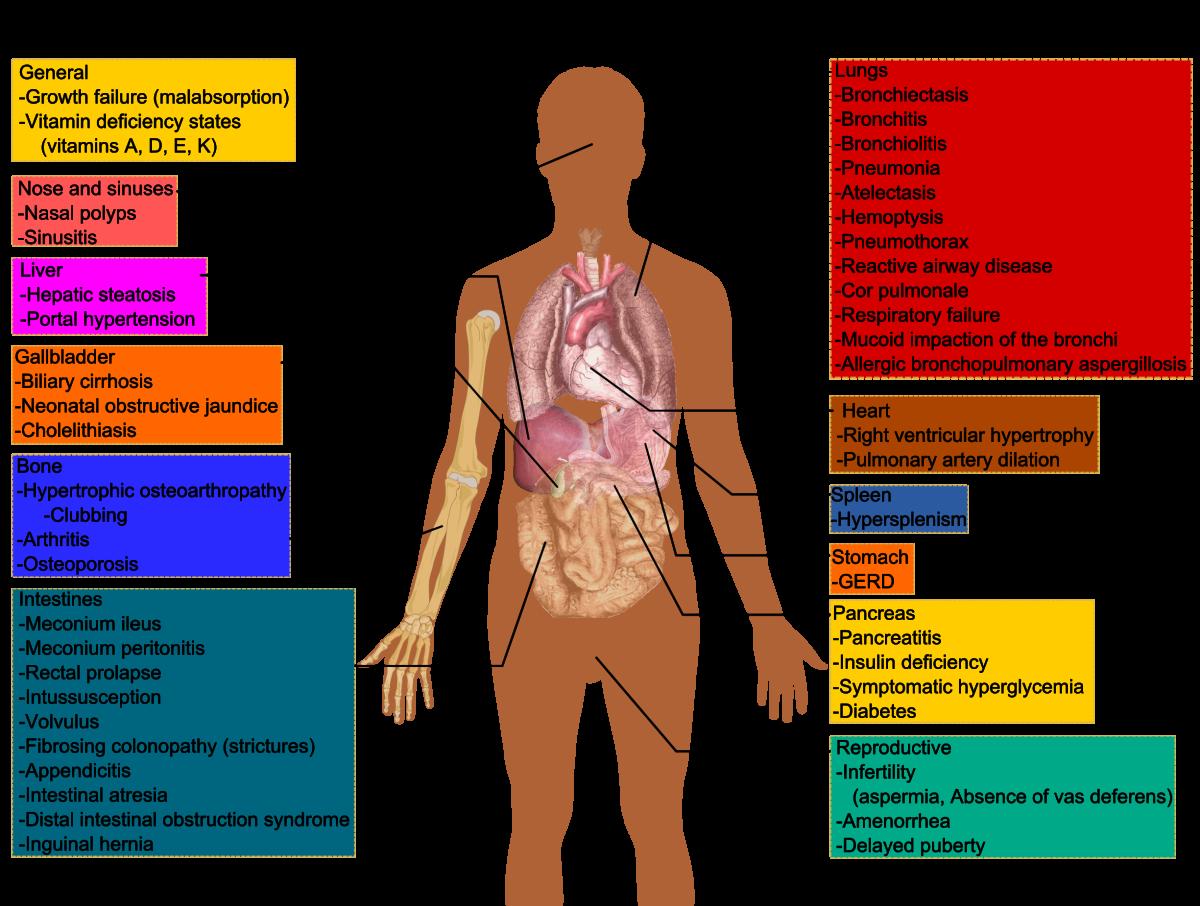 basics-of-cystic-fibrosis