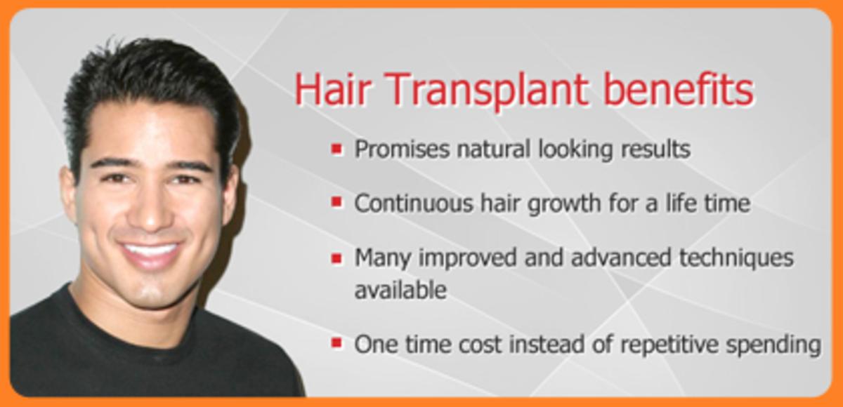 Benefits of Hair Transplantation