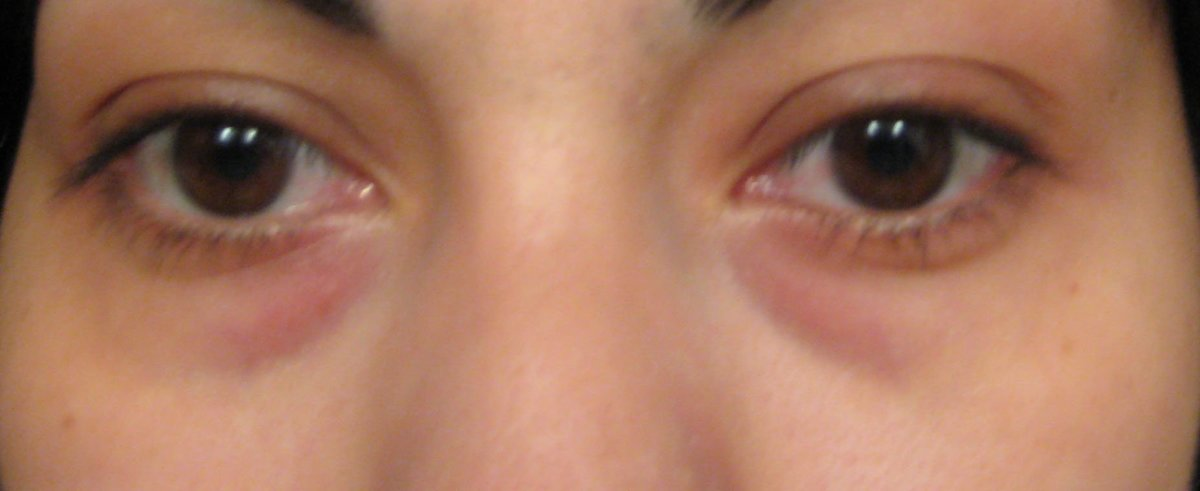 discoloration under eyes