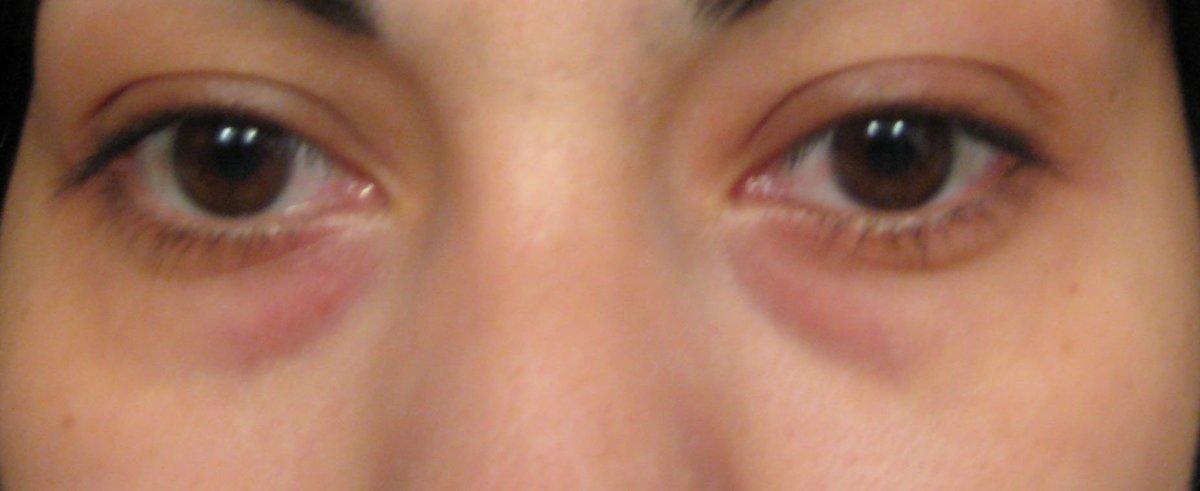 black rings under eyes