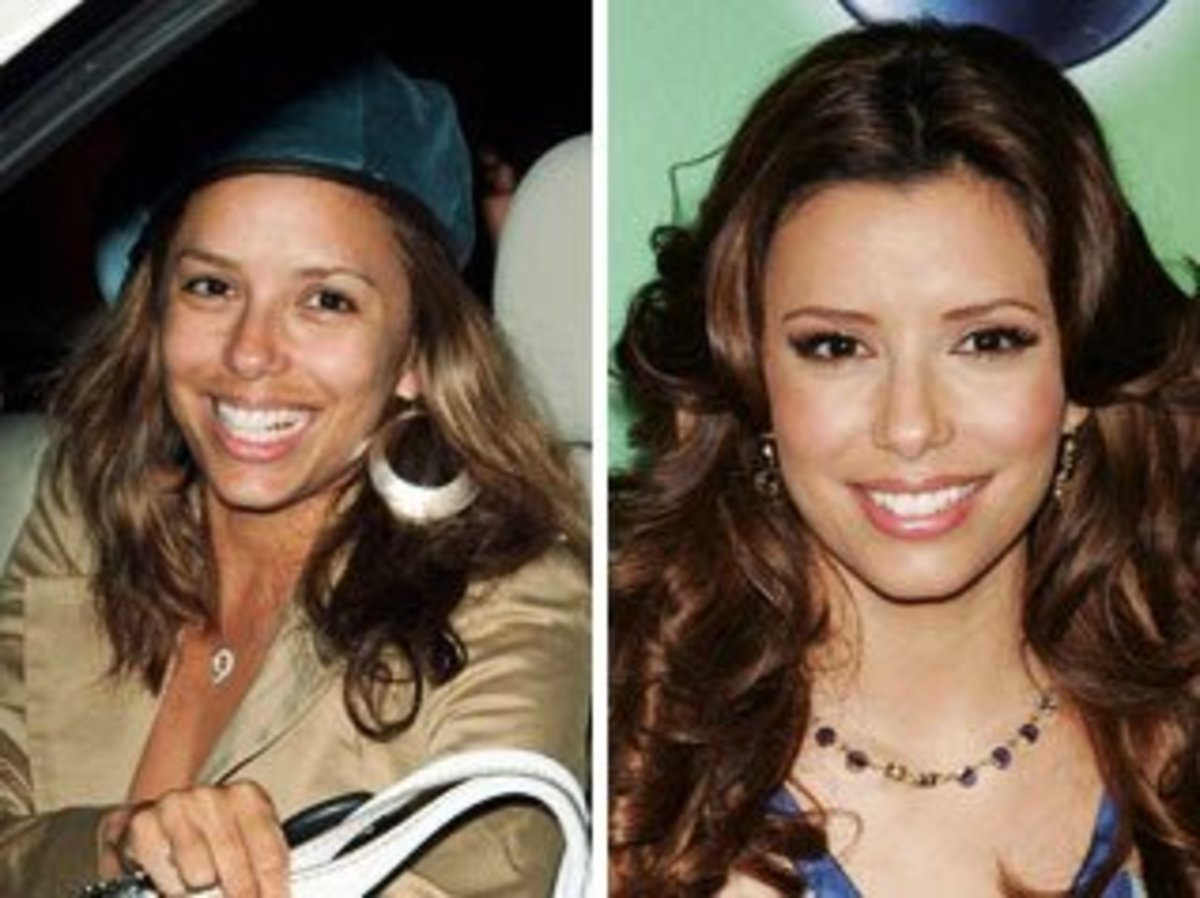 Eva Longoria has skin discoloration on her top lip.  You would never have guessed that was there under her makeup.