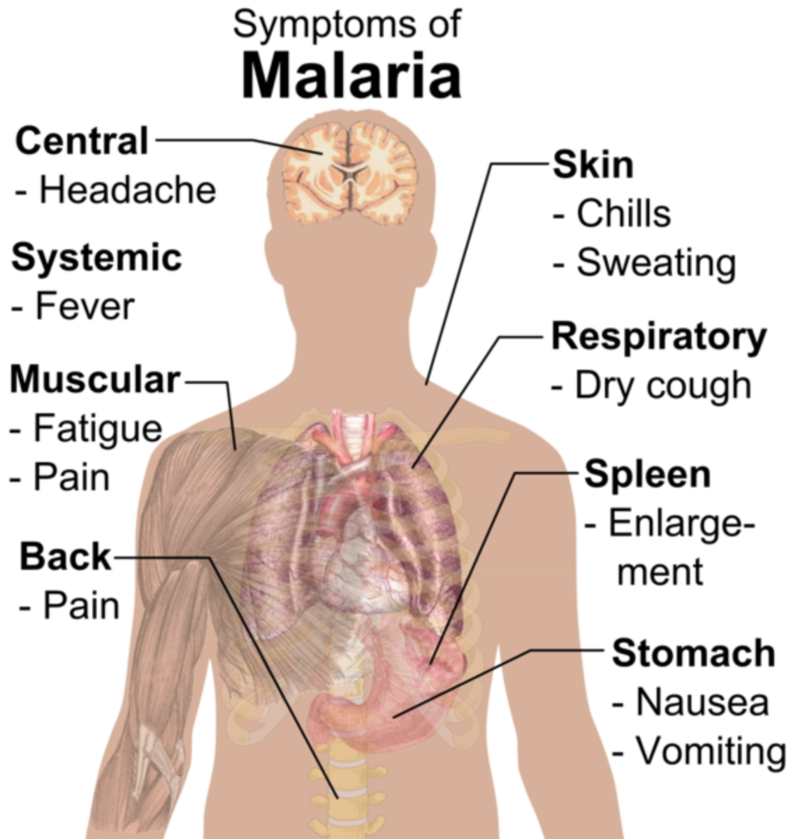 Symptoms of Malaria by area of body