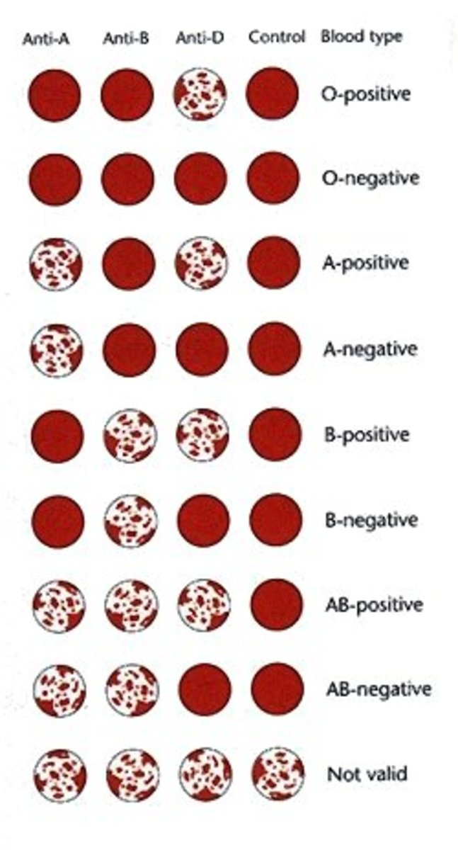 This chart demonstrates the standard ABO blood typing test results and each result's associated ABO and Rh D blood type.