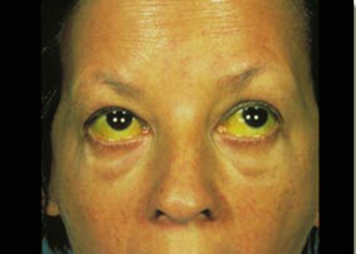 Jaundice in adult patient.