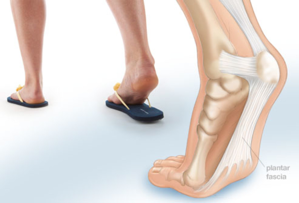 plantar-fascia-foot-pain-symptoms-causes-and-treatment