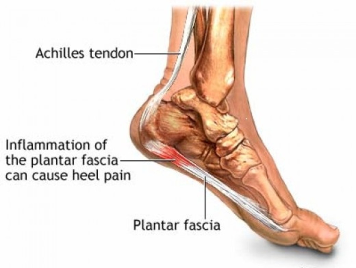 Plantar Fascia Foot Pain, Symptoms, Causes and Treatment