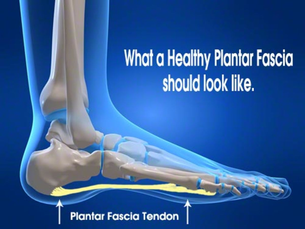 Not everyone is blessed with perfect feet, some people have high arches, while others have low arches or flat feet that can lead to heel pain, leg pain and even back pain.