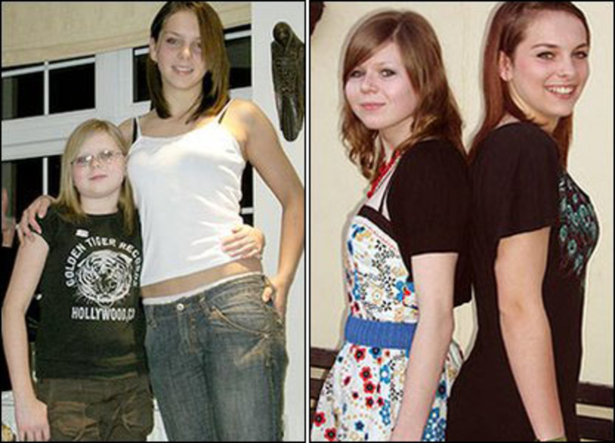 These twins on the left at age 12. You can see the smaller girl looks much younger than her twin as well as being significantly shorter. After treatment the girls appear much closer to the same age, and are closer to height.